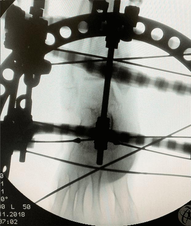 图4:环形固定器。