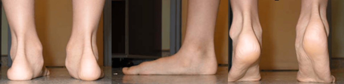 图5:柔性扁平足伴有足后跟向内翻。