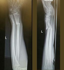 图7:X光片显示骨折。