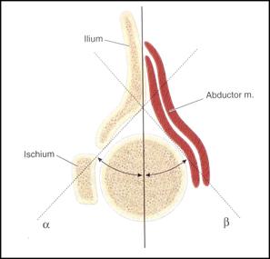 图7:图片显示超声检查测量的角度。来自Netter的惠赠。