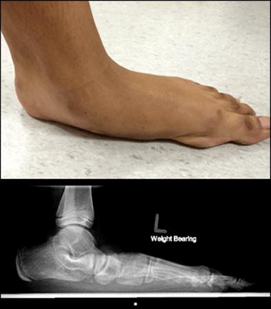 图8:照片和X光照片显示疼痛性柔性扁平足
