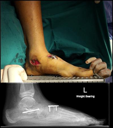 图9:照片和X光照片显示重建足弓后的足部