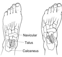 图2:图示正常(左足)和马蹄内翻足(右足)