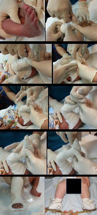 图4:照片显示了如何进行Ponsetti石膏固定。