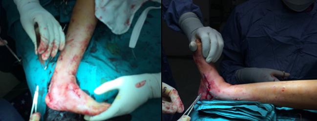 图6:-马蹄内翻足 手术