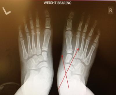图1:足部正位X光照片显示扁平足的距舟外展。 儿童扁平足