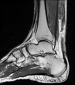 跟腱断裂的MRI检查