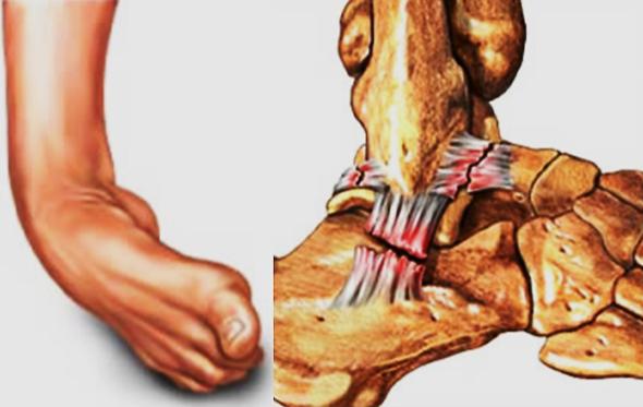 踝关节侧韧带