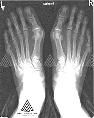 足部手术:拇囊炎切除术