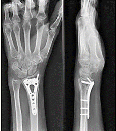 手术后愈合良好的腕关节骨折的X光检查