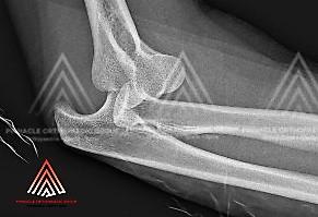 单纯性肘关节脱位(肘部屈戍关节破坏)的X光检查