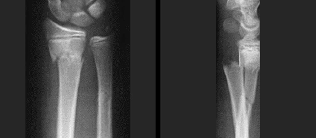 Wrist-fracture-4