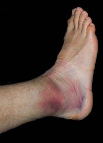 扭伤的踝关节 - 踝关节扭伤