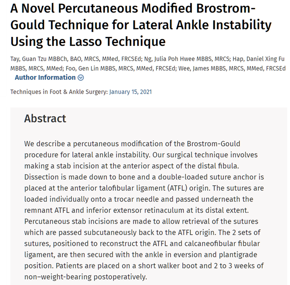 A Novel Percutaneous Modified Brostrom-Gould Technique for Lateral Ankle Instability Using the Lasso Technique